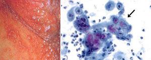 水疱をみる局所と感染細胞(パパニコロウ染色)