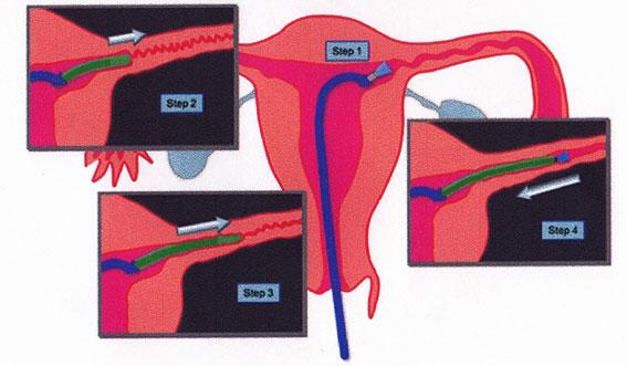 卵管鏡下卵管形成手術(FT)