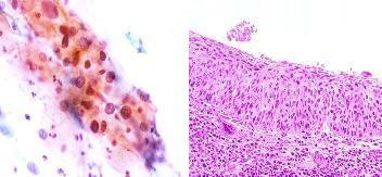 頸部の前癌病変